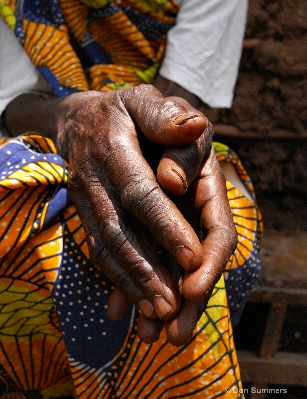 Strong but Gentle Hands, Rwanda 2008