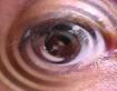Eye Drop......
