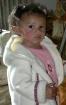 Rosey cheeks