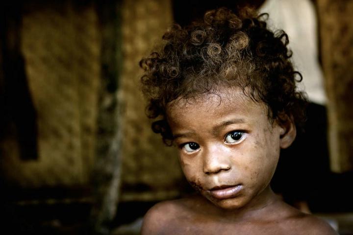 Ati Child