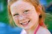 fleckles