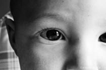 Infant eye